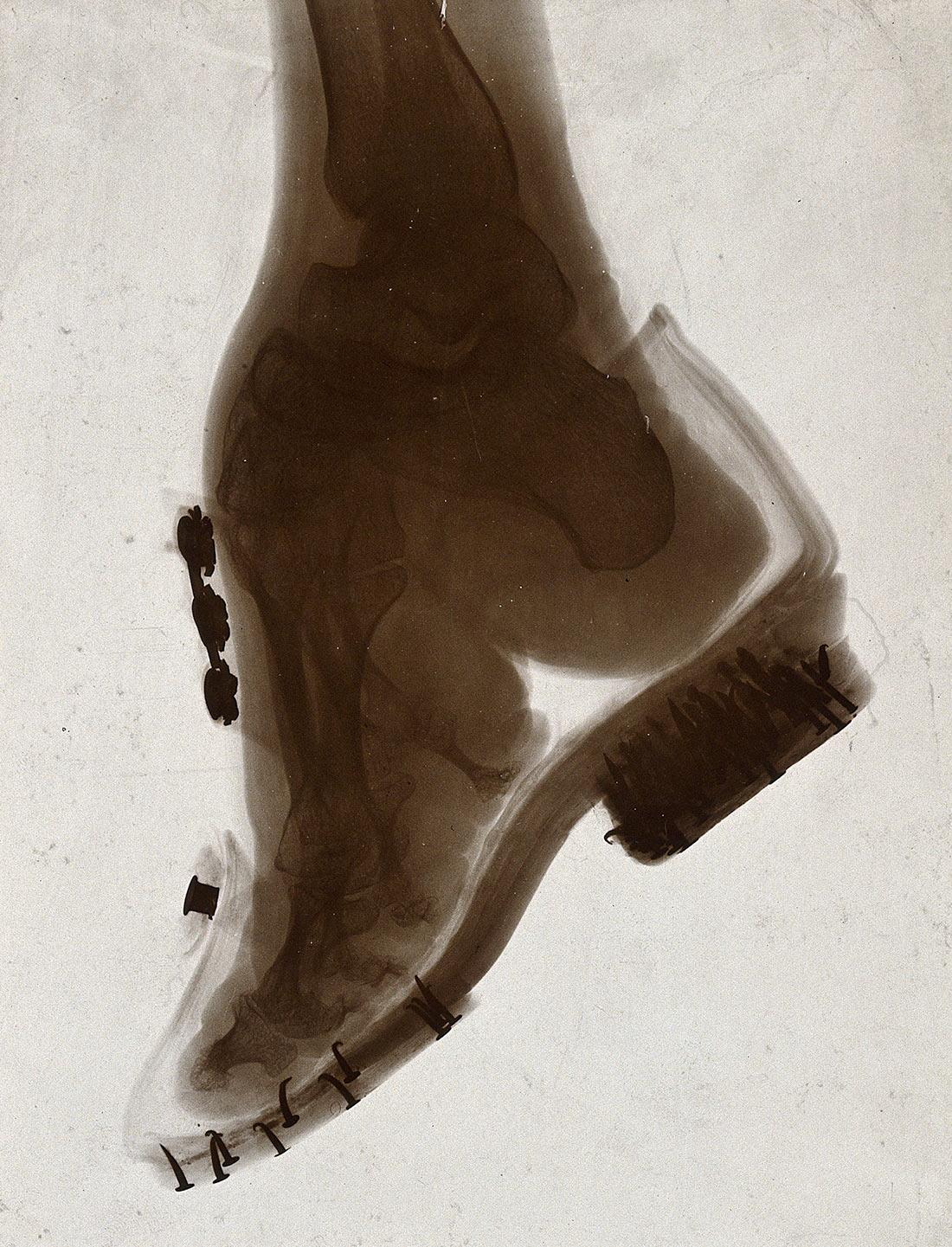 лотосовые ножки